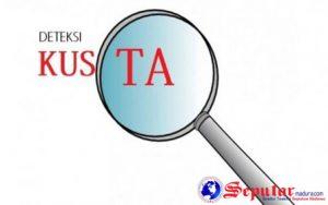 227 Masyarakat Bangkalan Terserang Penyakit Kusta